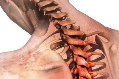 Грыжа позвоночника: упражнения, лечебная физкультура