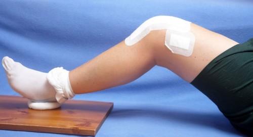 Артроз коленного сустава: лечение, лечение народными методами