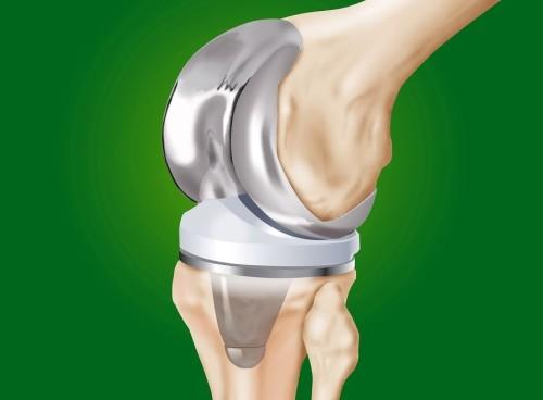 цены по замене коленного сустава по мурманску
