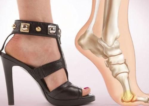 Первая помощь при подагрическом артрите