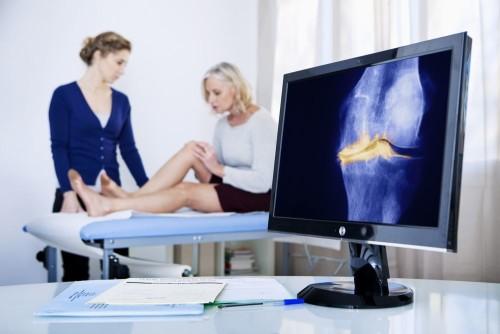 Причины возникновения и лечение деформирующего артроза коленного сустава
