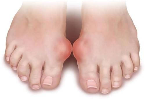 Ревматоидный артрит стопы