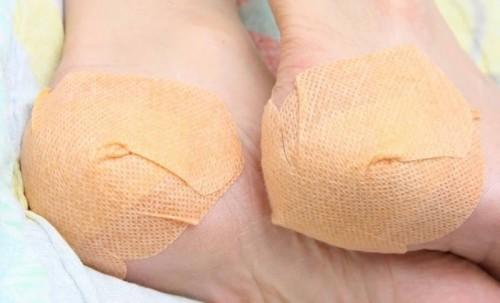 Признаки и симптомы шпоры на пятках