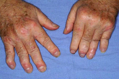 Псориатический артрит: симптомы, лечение и профилактика