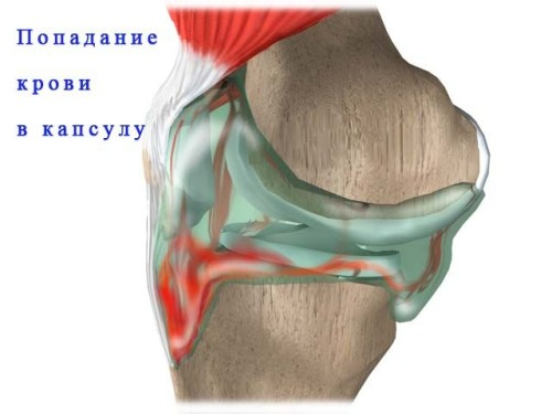 Гемартроз коленного сустава: симптомы и лечение