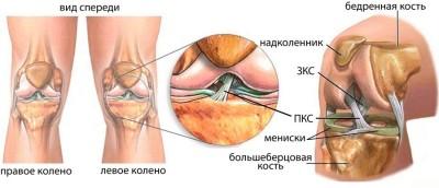 Искривление коленного сустава лечение
