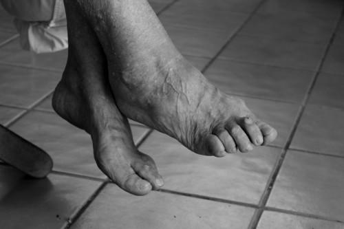 Артрит больших пальцев стоп