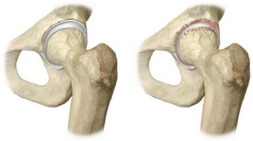 Ревматоидный артрит симптомы, диагностика, лечение