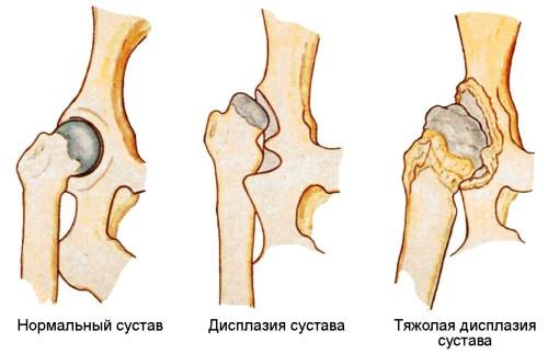 Симптомы и лечение дисплазии тазобедренных суставов