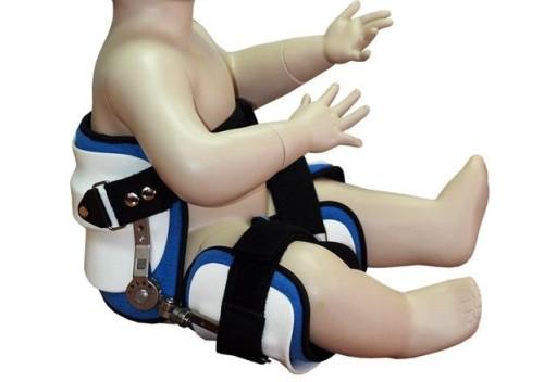 Особенности дисплазии тазобедренных суставов у детей