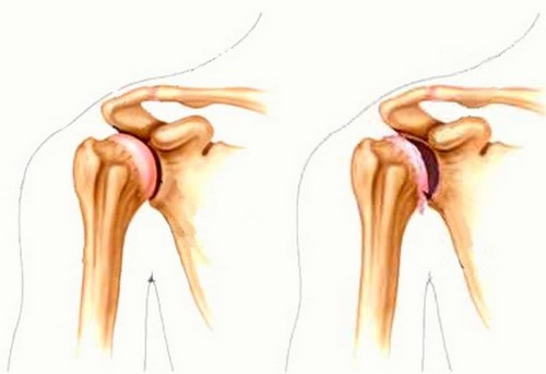импинджмент  плечевого сустава