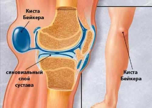 Киста бейкера коленного сустава
