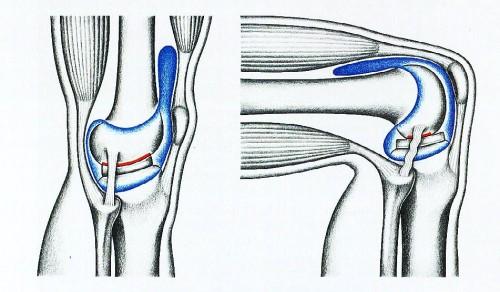 Синовит коленного сустава: лечение с помощью медикаментов и народных средств