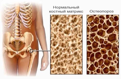 Методы лечения остеопороза
