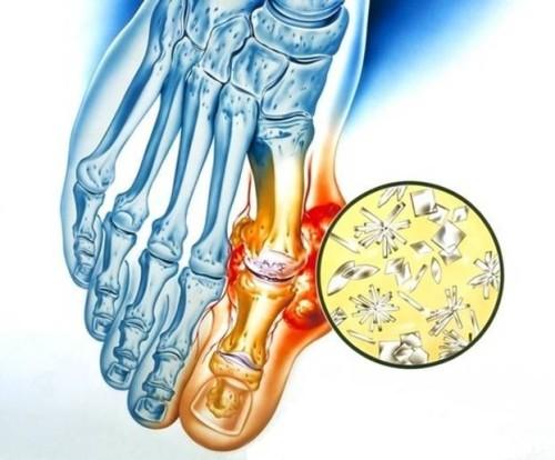 Подагрический артрит: провокационные поводы и симптомы