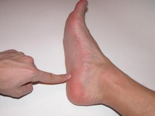 Санатории с лечением ревматоидного артрита