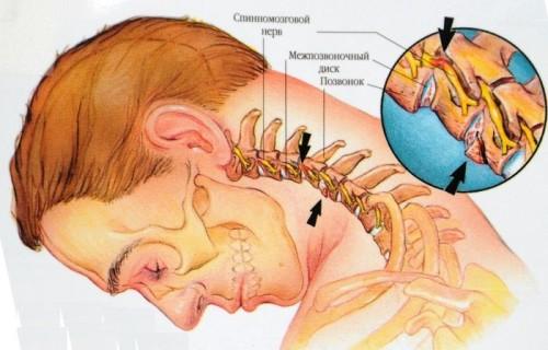 Шейный остеохандроз