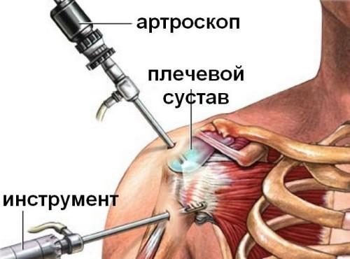 Вывих сустава операция