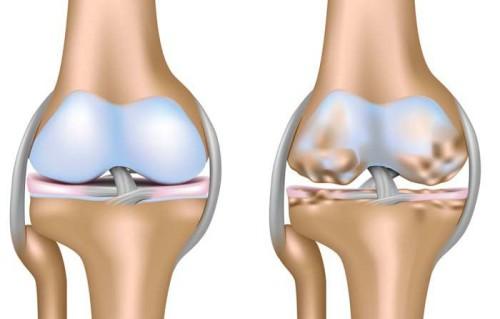 Причины возникновения и степени артроза коленного сустава
