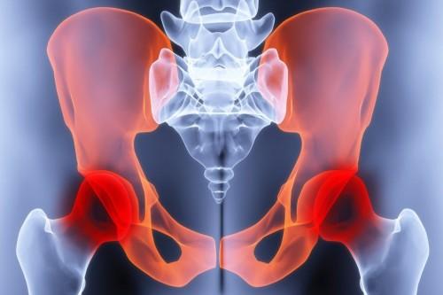 Боль в тазобедренном суставе при беременности