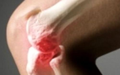 Возможные причины возникновения боли в суставах