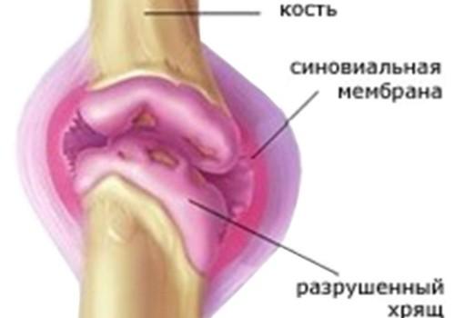 Классификация и профилактика артрита колена