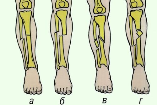 Особенности лечения закрытого перелома