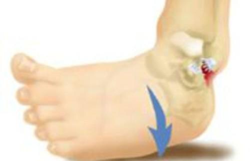 Особенности реабилитации после перелома лодыжки