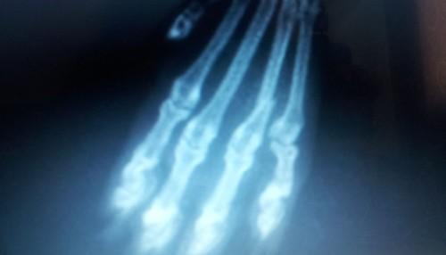 Перелом пальца