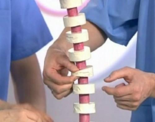 Причины, симптомы, лечение и профилактика грыжи шморля