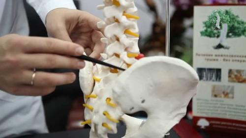 Причины возникновения и методы лечения межпозвоночной грыжи пояснично-крестцового отдела позвоночника