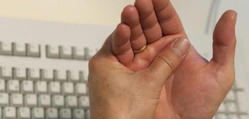 Симптомы и лечение артрита