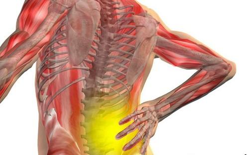 Остеопороз: симптомы, признаки и факторы риска