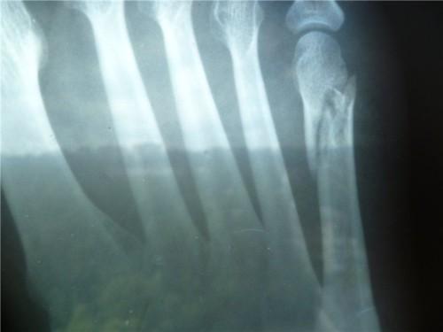 Виды, лечение и симптомы перелома мизинца на ноге