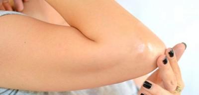 Лимфодема ног лечение народными