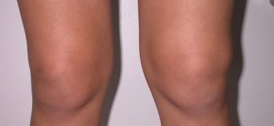 Характеристика и симптоматика заболевания: синовит колена