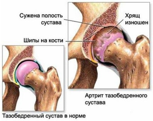 Артрит серьезное и опасное заболевание суставов