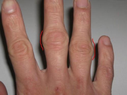 Вопреки мнению, артрит может причинять страдания не только пожилым!