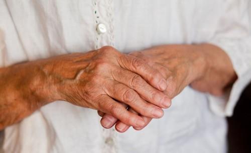 Причины, диагностика и лечение полиостеоартроза пальцев рук