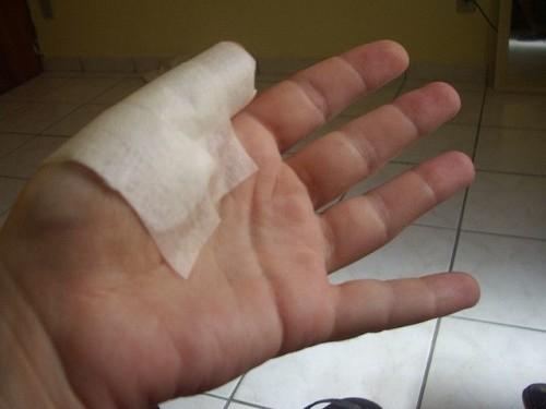 боли в большом пальце руки
