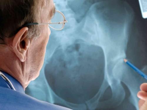 Артрит тазобедренного сустава: причины симптомы лечение