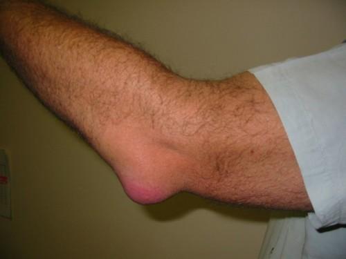 Жидкость в локтевом суставе лечение народными средствами ортопедические аппараты на коленные суставы