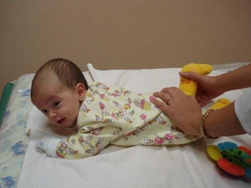 Дисплазия у младенцев массаж