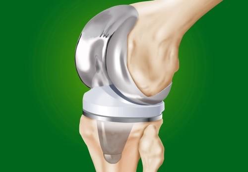 Форум об эндопротезировании коленного сустава травмы суставов лечение