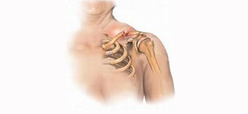Фиксация плечевой кости