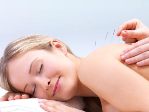 Иглоукалывание при грыже позвоночника: лечение спины