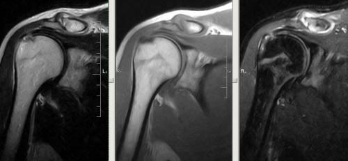 Исследование мрт коленного сустава