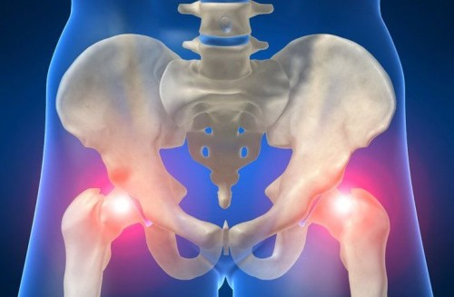 Причины и лечение коксоартроза