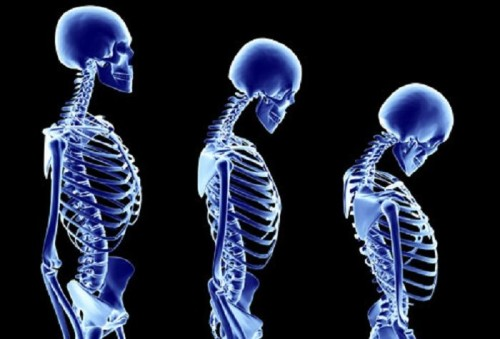 Что такое остеопороз и как его лечить