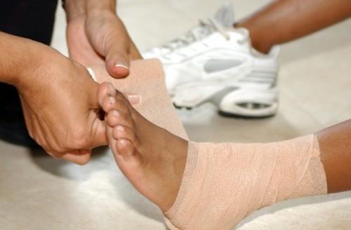 Лечение растяжения голеностопа